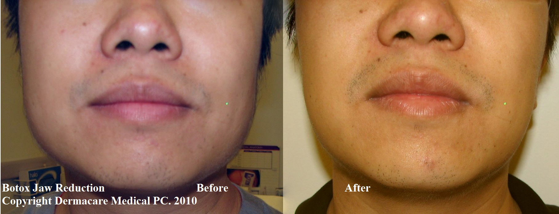 Jaw Muscle Botox Botox Jaw Reduction Before And