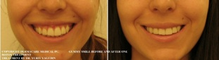 gummy smile before and after botox correction