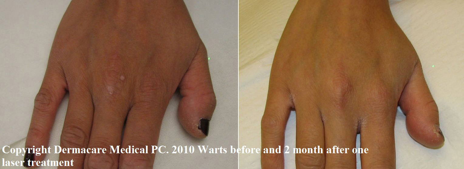 hand wart before and after laser treatment
