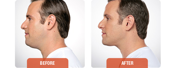 kybella male before and after