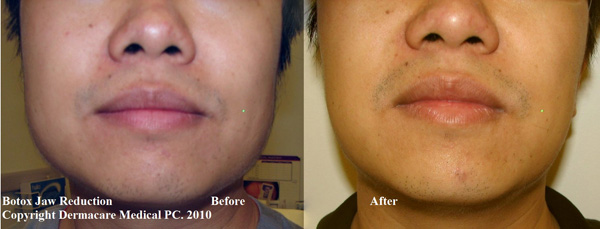 botox jaw muscle reduction male