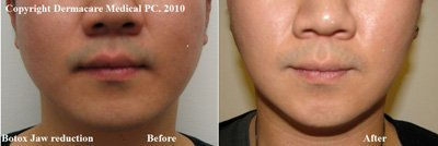 Botox jaw reduction in male before and after photo