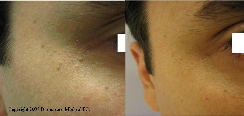 Manhattan New York Mole Skin Tag Removal With Radiosurgery Or Laser