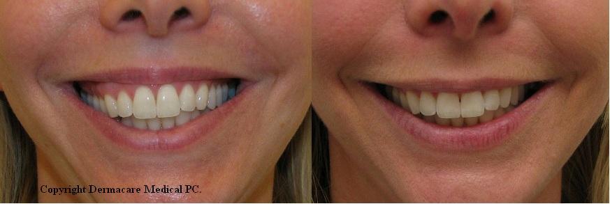 NEW YORK BOTOX GUMMY SMILE correction