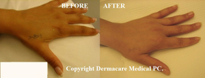 laser tattoo removal hand