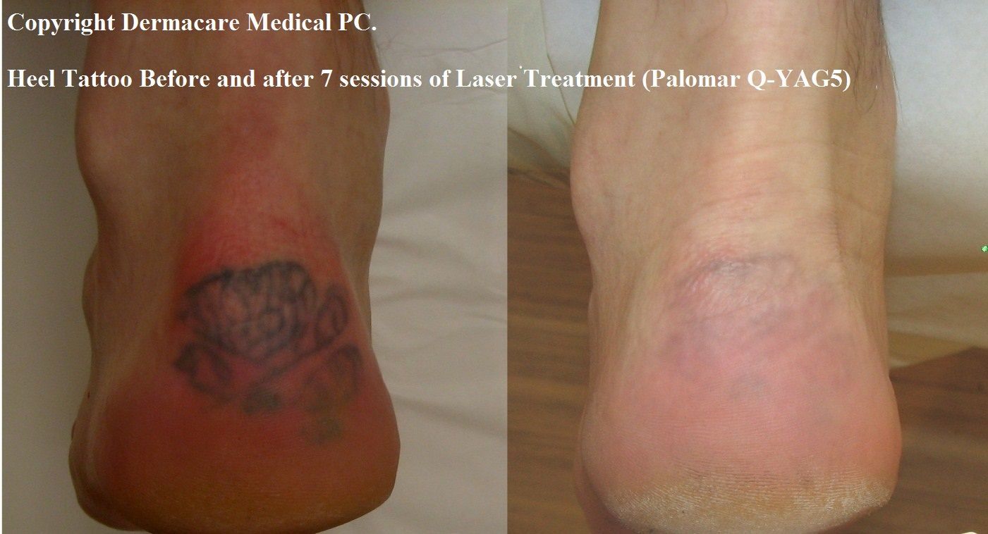 1000 images about tattoo removal prices on pinterest for Laser remove tattoo price
