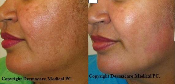 New York Freckle Sun Age Spots Laser Treatment With Ipl