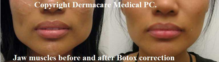 Botox jaw muscle reduction female