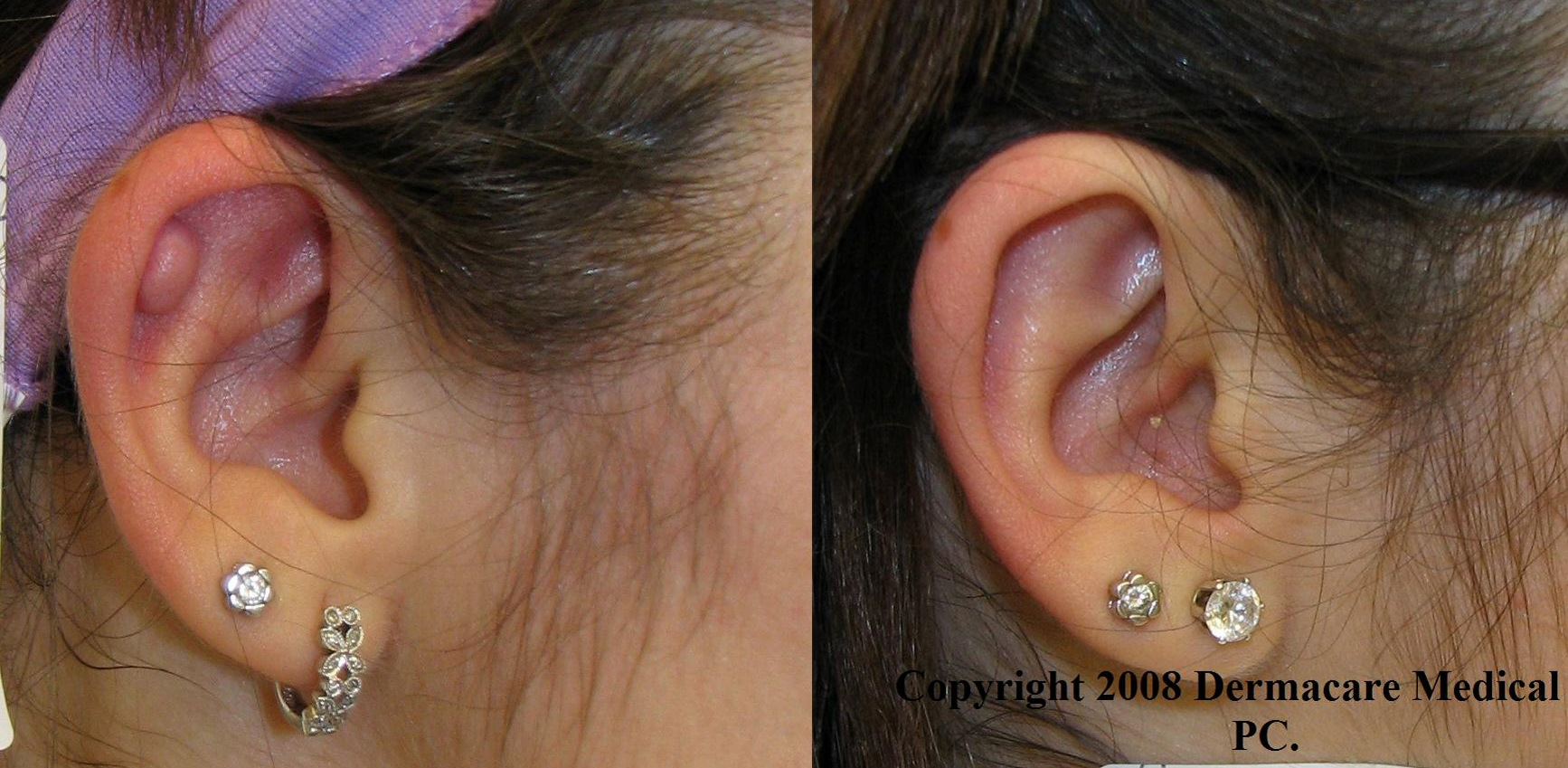 New York Keloid Removal And Scar Treatment And Improvement