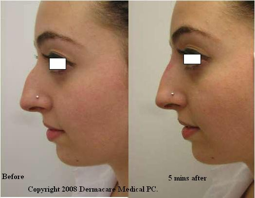 new york non surgical nose job