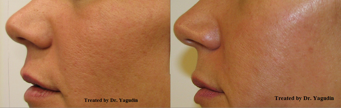 New York Pore Reduction Skin Rejuvenation Fine Lines Improvement