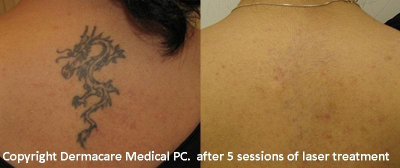Laser Tattoo Removal New York