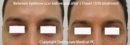 Fraxel scar treatment