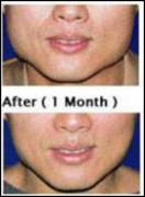 Botox jaw reduction before and after
