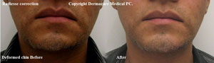 deformed chin correction with Radiesse