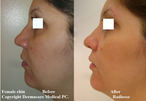 female chin before and after radiesse correction