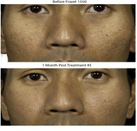fraxel acne scars before and after