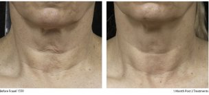 fraxel neck before and after