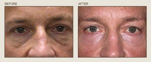Fraxel eyelids resurfacing