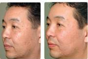 male before and after erbium laser resurfacing
