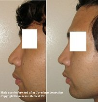 nose job before and after juvederm