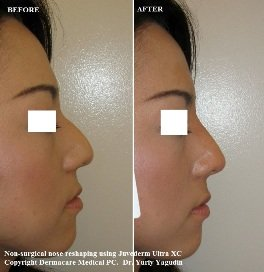 nose job non surgical picture before and after asian