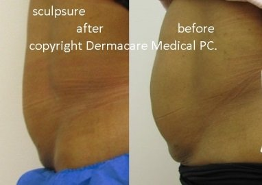 sculpsure after before
