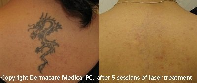 bacl laser tattoo removal