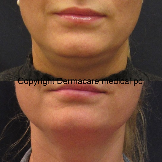 kybella before after chin