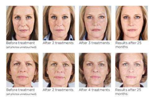 Sculptra face before and after